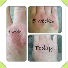 Loving these results from juice plus contact me @ kayleighroddy@hotmail.co.uk If interested