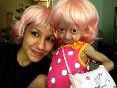 Adalia Rose Blog...the word heartwarming doesn't do her justice! And what a WONDERFUL mommy she has!  :-)  Adalia and her Mom, rockin' out with the trusty pink wig. Every girl should have one!