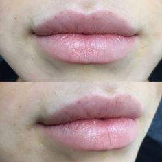 lips – My hair and beauty Cosmetic Fillers, Botox Fillers, Dermal Fillers, Lip Fillers, Lip Injections, Lip Plumper, Botox Lips, Facial Aesthetics, Lip Augmentation