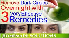 Remove Dark Circles Overnight | Home Remedies To Remove Dark Circles - YouTube
