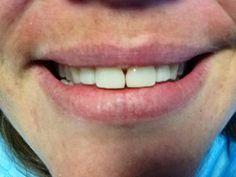 Casó solucionado con composite , es duradero y reversible. , el diente no es alterado.