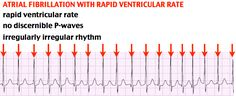 Atrial Fibrillation with Rapid Ventricular Heart Rate Rosh Review