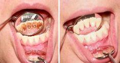 Koniec z kosztownymi wizytami u dentysty