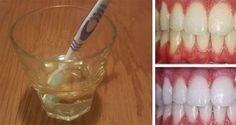 Blanchir ses dents naturellement grâce à un seul ingrédient