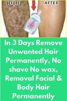 Upper Lip Hair Removal, Chin Hair Removal, Permanent Facial Hair Removal, Underarm Hair Removal, Electrolysis Hair Removal, Remove Unwanted Facial Hair, Hair Removal Cream, Unwanted Hair, Anti Aging