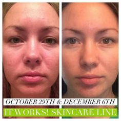 This is what our amazing skin care line can do... the best kept secret!!! www.cindygregg.com