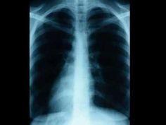 Asthma - an essential fatty acid deficiency