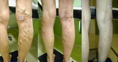 Heal Your Varicose Veins With A Mix Of Aloe Vera, Carrot And Apple Cider Vinegar - Health Living Solution Varicose Vein Remedy, Varicose Veins Treatment, Aloe Vera, Apple Cider Vinegar Health, Natural Home Remedies, Natural Treatments, Natural Medicine, Weight Loss Tips, The Cure