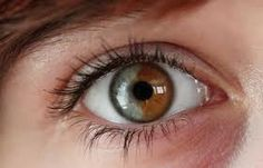 heterochromia- this one kinda looks like the ying yang symbol thingy