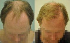 FUE hajbeültetés természetes eredménye, 2850 grafttal történt beavatkozás után. Az első műtét során hajvonal képzést és az elülső terület fedését végeztük el. Látható a finom természetes hajvonal és a sűrű, nagyon jó hatású fedés. Kontroll képek 11 hónappal a hajbeültetés műtét után készültek.  FUE hair transplant natural result with 2850 grafts   ...