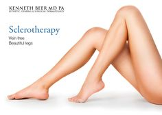 """Sclerotherapy is a popular method for treating unsightly veins and superficial telangiectasias (""""spider veins"""") in which a clear solution (called a """"sclerosing agent"""") is injected into the veins. Call us for an appointment at (561) 655-9055. #floridabeauty #flawless #transformations"""