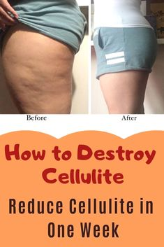 Can you get rid of cellulite once you have it? Is there an optimal way to reduce cellulite in one week or push even beyond that to find out how to get rid of cellulite in 2 weeks? One of our contributing experts. Leg Cellulite, Cellulite Exercises, Cellulite Remedies, Reduce Cellulite, Cellulite Scrub, Cellulite Workout, Neck Exercises, Step Ejercicios, Losing Weight Tips