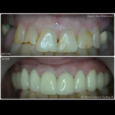 Pin By Bee Beautiful Bee On Dental Cosmetic Dentistry