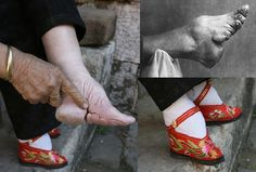 A Chinese woman's bound foot, reduced to four inches to symbolize wealth and beauty.