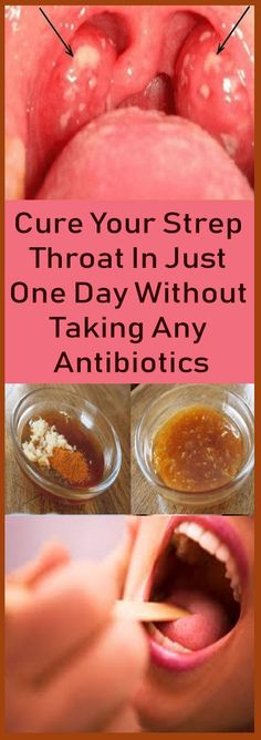 Cure Your Strep Throat In Just One Day Without Taking Any Antibiotics – Let's Tallk