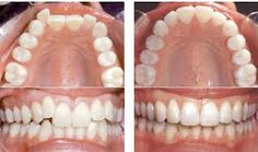 Image result for invisalign before after