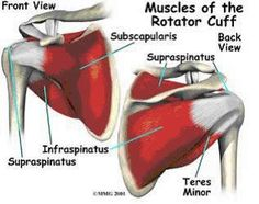 Rotator Cuff Injuries and the S.I.C.K. Scapula Rotator Cuff Exercises, Rotator Cuff Tear, Shoulder Impingement Syndrome, Pain Assessment, Shoulder Anatomy, Shoulder Joint, Shoulder Rehab, Shoulder Muscles, Shoulder Injuries