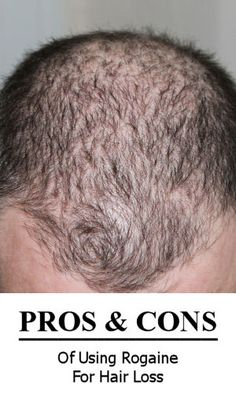 The pros and cons of using Rogaine (Minoxidil) to regrow hair, and slow hair loss.