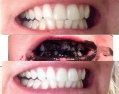 Natural Teeth Whitening Remedies Weird, but cool. and probably much cheaper than whitening strips. Homemade Beauty, Diy Beauty, Beauty Makeup, Beauty Hacks, Teeth Whitening Remedies, Natural Teeth Whitening, Charcoal Teeth Whitening, Skin Whitening, Tips Belleza