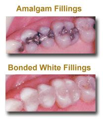 No more ugly black or metallic fillings in your future. Let's face it, metal doesn't bond well to teeth. So decay can and eventually does seep into the silver-mercury amalgam repaired tooth. With our white bonded fillings, we not only offer a modern restoration in a natural-looking white, but the material bonds so tightly to the healthy part of your tooth, it actually seals the tooth, preventing future decay.