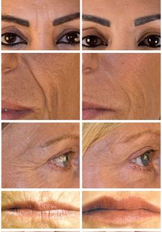 Dermal Filler Before & After photos from The Private Clinic
