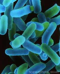 Shigella dysenteriae bacteria.  So beautiful.  Not the symptoms, but Shigella is just so interesting in its mechanisms.  You just have to have respect for bacterial evolution.