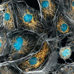 And these are our lung cells. | This Is What The Human Body Really Looks Like Under A Microscope