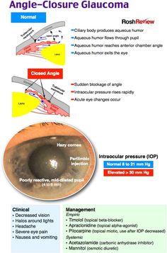 oftalmologie: glaucom