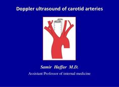 Doppler ultrasound of carotid arteries