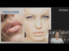 Фрагмент. Как сделать губы своей мечты. Программа реабилитации и коррекции - YouTube