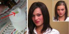 A Natural Solution Against Dandruff – Argan Oil – Hair Care Tips Argan Oil Hair, Hair Oil, Dyed Red Hair, Essential Oils For Skin, Hair Growth Treatment, Hair Loss Remedies, Hair Transplant, Super Hair, About Hair