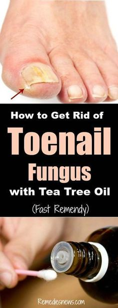 toenail fungus remedies How to Get Rid of Toenail Fungus with Tea Tree Oil (Fast Remedy): Here are some home remedies to treat nail fungus fast at home that you may want to try. Find here the causes, symptoms and the treatment of nail fungus. Fingernail Fungus, Toenail Fungus Cure, Toenail Fungus Treatment, Fungus Toenails, Essential Oil Toenail Fungus, Toenail Removal, Nail Treatment, Weight Gain, Pedicures