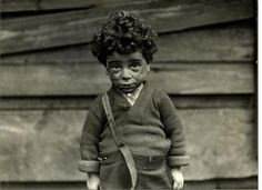 One of the underprivileged, Hull House, Chicago 1910, by Lewis Wickes Hine