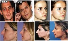 Visit our site http://nosejobcost.org for more information on Men Nose Job Before And After.Nose Job Cost varies baseding on which kind of Rhinoplasty you would want your surgeon to carry out. While this kind of plastic surgery is among the most usual and popular, the Nose Job Cost can still vary from patient to client.