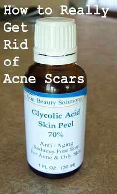 oz / 30 ml) GLYCOLIC Acid Skin Chemical Peel - Unbuffered - Alpha Hydroxy (AHA) For Acne, Oily Skin, Wrinkles, Blackheads, Large Pore - seems kinda of dangerous but I want to try this! Natural Acne Treatment, Skin Treatments, Scar Treatment, Acne Skin, Oily Skin, Acne Scar Removal, Acne Remedies, Beauty Tricks, Skin Care