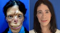 The story of Asiye Engiz - burns and facial reconstruction Medical Miracles, Vintage Oddities, Find A Doctor, Red Lip Makeup, Wtf Fun Facts, Health Promotion, Plastic Surgery, Face And Body, Healthy Life