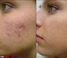 How to Get Rid of Acne Scars? (Home Remedies) How to get rid of acne scars fast and naturally by using home remedies and other acne scar treatment. Acne is a skin infection, which leaves ugly scar. Lr Beauty, Beauty Care, Fashion Beauty, Fast Fashion, Chemisches Peeling, Beauty Hacks For Teens, How To Get Rid Of Pimples, Womens Health Magazine, Acne Scar Removal