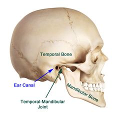 jaw joint pain: Just like other joints in the body the Temporo-mandibular Joint or Jaw Joint suffers Arthritis and severely painful condition called as Temporomandibular Joint Disorders (TJD). Tmj Massage, Massage Therapy, Human Skull Anatomy, Tmj Headache, Jaw Pain, Body Joints, Muscle Anatomy, Natural Teeth Whitening, Acupuncture