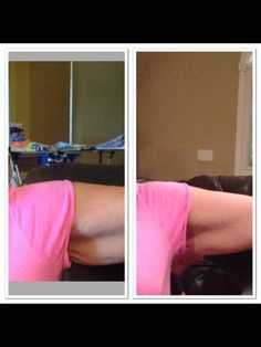 Nerium firm 30 day results!! Nerium FIRM works on spider veins,cellulite, wrinkles, stretch marks, and firms skin under the arms, thighs, neck, décolleté, knees, belly. It has been clinically tested. These photos are not photoshopped, and were taken by Brand Partners on iphones and other smart phones. Contact me www.chelseafore.nerium.com