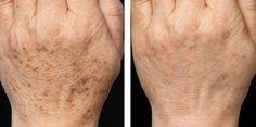 Мы подобрали для вас 6 эффективных средств, которые помогут избавиться от пигментных пятен: Меланоциты – клетки, отвечающие за основную пигментацию человеческой кожи. Эти клетки производят тёмный и самый главный пигмент нашей кожи под названием меланин. Однако очень часто встречаются такие случаи, когда по определённым причинам в некоторых участках кожи меланоциты вырабатывают избыточное количество меланина, что […]
