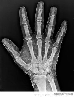 Funny pictures about Radiograph of a hand dipped in iodine. Oh, and cool pics about Radiograph of a hand dipped in iodine. Also, Radiograph of a hand dipped in iodine photos. Hand Reference, Anatomy Reference, Drawing Reference, Hand Anatomy, Atlas Anatomy, Rad Tech, Anatomy For Artists, Wow Art, Anatomy And Physiology