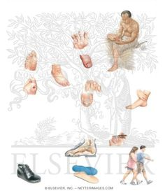 Diabetic Foot Care Information   Foot Care for People With Diabetes - Netter Medical Illustrations