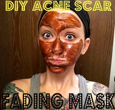 Acne Scar Mask-Beauty tip-- My face feels super clean! It did make my skin a bit pink because of the lemon but, I didn't feel any burn(at 7 drops of lemon). I'd advise that you make sure it's pasty! It WILL drip! Wear a t-shirt while doing this just in case!