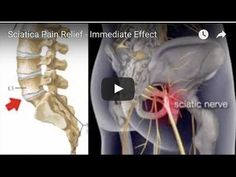 Sciatica Pain Relief — Immediate Effect - YouTube