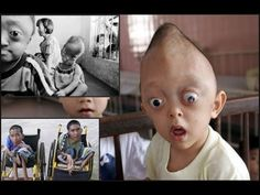 Agent Orange Orphans : 50 years on children suffer from effects of U. Sympathy For The Devil, Chemical Weapon, Corporate America, Military Veterans, Orphan, Powerful Words, Memorial Day, Vietnam, The Past
