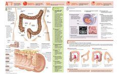 radiación de próstata y gastritis