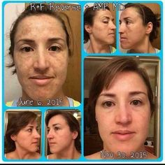 REVERSE is the first regimen I used.  My face literally glowed after just  two weeks.  Amazing stuff!