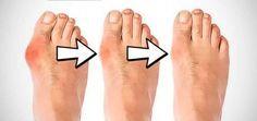 """Comment soigner un oignon au pied naturellement ? (Halluxl Valgus) Remèdes de grand-mère pour apaiser la douleur et réduire taille de l""""oignon"""