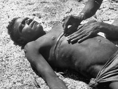 Australian Aborigine While Incisions are Made on His Chest to Produce Decorative Scars