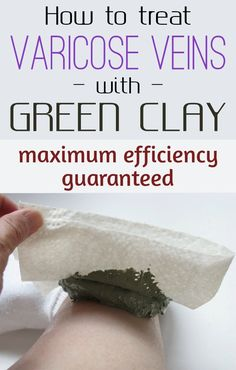 How to treat varicose veins with green clay: maximum efficiency guaranteed - JustBeautyTips.net